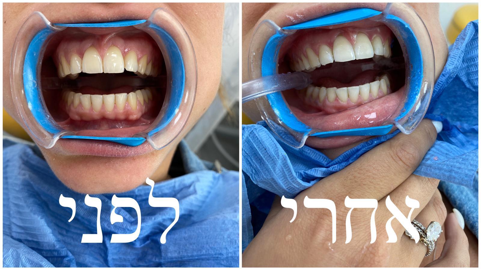 הלבנת שיניים - לפני ואחרי